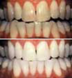Teeth stained improved with tooth whitening at Manningtree Practice