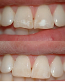 Developmental white stains removed using microabrasion