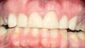 Repaired with composite veneers
