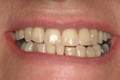 Smile improved with composite veneers